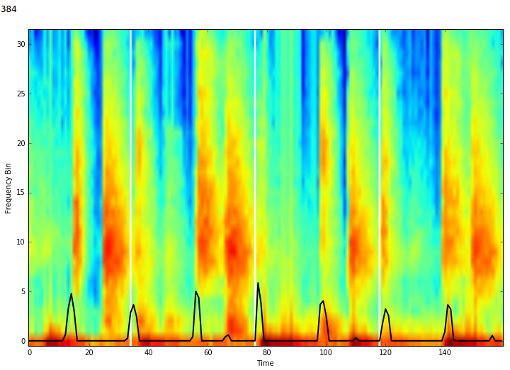 Pulse Prediction in Validation Set Over Spectogram